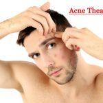 Cara Tepat Merawat Kulit Wajah yang Sedang Berjerawat